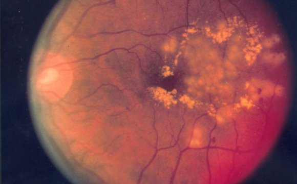 Color Fundus Photographs